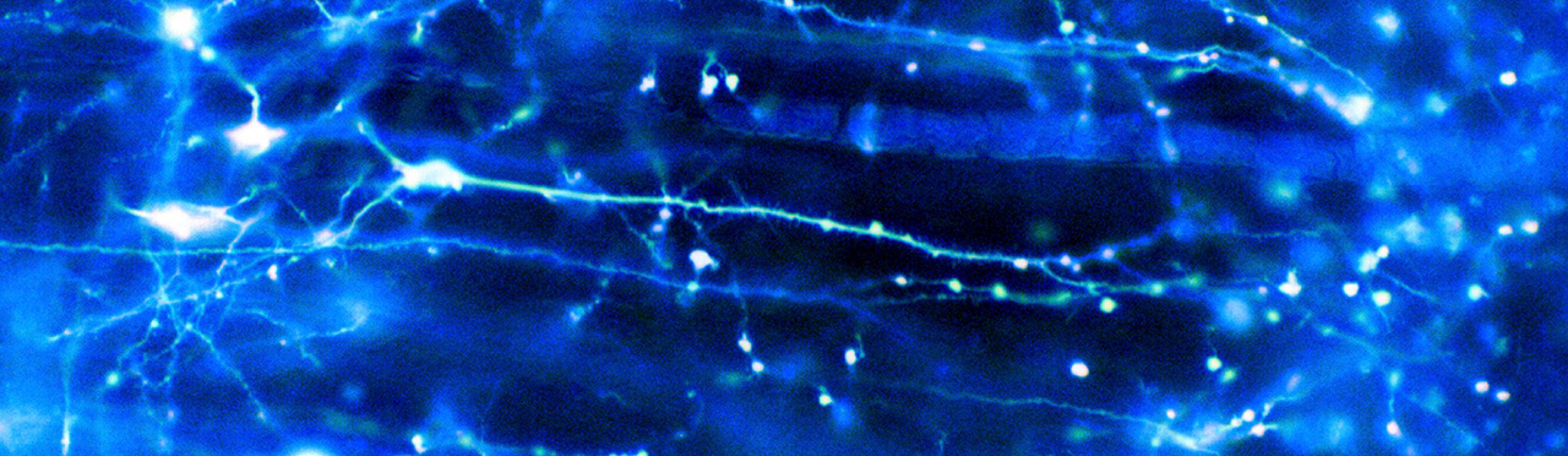 Neurons in the brain. Credit: Dr Jonathan Clarke (CC-BY-4.0)