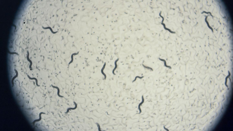 C. Elegans on a petri dish
