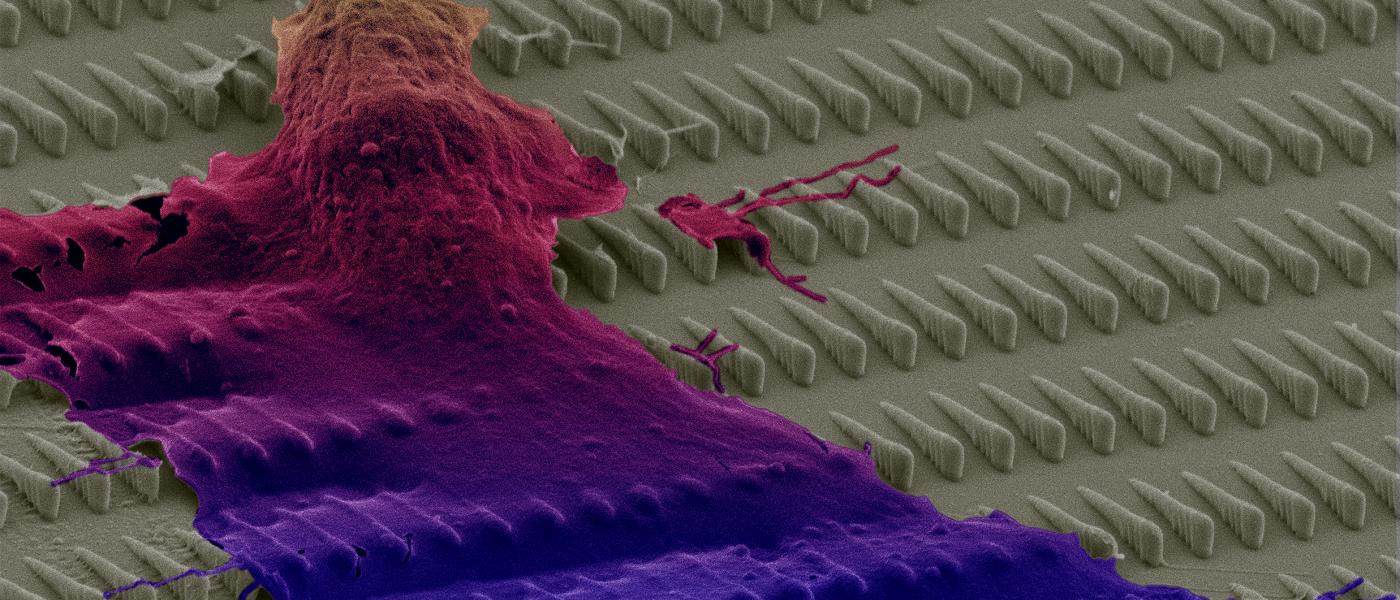 Cancer cell over nano surface_SEM image
