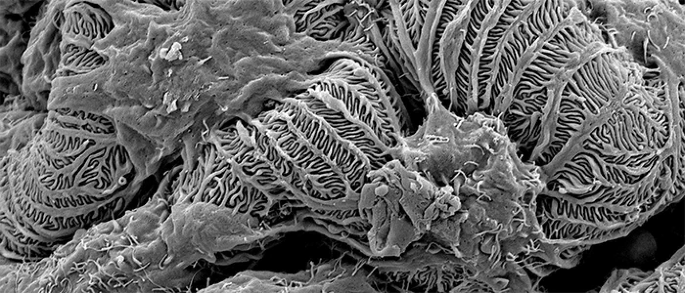 Globular podocyte
